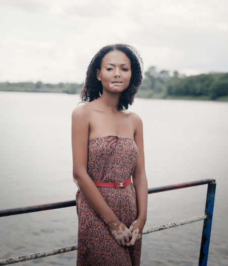 Portrait of woman suffering from vitiligo standing against lake