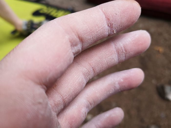 Dry Hand