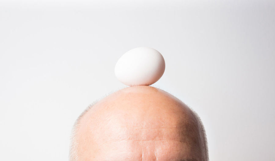 Adult Adults Only Backgrounds Bald,health Baldhead Baldness Close-up Day Egg Fragility Human Body Part Human Hand Indoors  One Man Only One Person Only Men People Skin Sport Studio Shot White Background White Backround