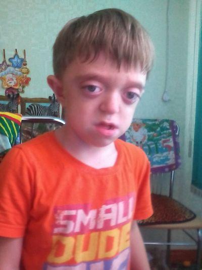 Единственный ребенок на всю Ростовскую область с очень редким генетическим заболеванием Синдром Октава Крузона, Мальформация Киари 1 типа ,Гипертензиоонно -Гидроцефальный синдром,ППЦНС,Полностью Отсутствует Носовое Дыхание , Контрактуры Логтевых Суставов ( Ваня не может полностью разгибать ручки) Вальгусная деформация стоп (Ванечку мучают невыносимые боли) В 2014 году малыш перенес 2 операции.В 2015 в январе сделали третью,после перенесенного наркоза у Ванечки развилась Функциональная Кардиопатия . В марте 2015 Ванечка прошел курс реабилитации в Сибири, по приезду, полученные результаты вселили в нас Надежду,что Ванечке можно избежать очередной операции ,УЖЕ В НАЧАЛЕ АВГУСТА 2015 ,НАС ЖДУТ НА ВТОРОЙ КУРС!! ТАКЖЕ НАМ НУЖНО ПРОЙТИ КАРДИО ОБСЛЕДОВАНИЕ!Мы очень надеемся,что люди нам помогут!Сумма к сбору 300.000 РУБЛЕЙ! Это уже неподъемная сумма для семьи Ванечки и мы просим всех людей, неравнодушных к чужому горю - помогите! Поделитесь капелькой доброты, и пусть она вернется к вам сторицей! 10, 50, 100, 300, 500 руб- для нас важна любая сумма! С миру по нитке- и мы, вместе, подарим ребенку шанс на жизнь!!! 🆘🆘🆘Помочь Ване можно прямо СЕЙЧАС🆘🆘🆘 Реквизиты для перечисления средств: ✔Мегафон +7 928 616 64 11 ✔Яндекс :4100 1288 3345 196 ✔PayPal : agureeva2307@ mail.ru ✔МТС:+7 918 523 44 38 ✔Номер карты Сбербанка : 5469 0152 0606 4447 ✔️Киви 918 511 40 43 ✔доп.Сберкарта : 6761 9600 0090 5959 28 Владелец Слепоконь Надежда Михайловна
