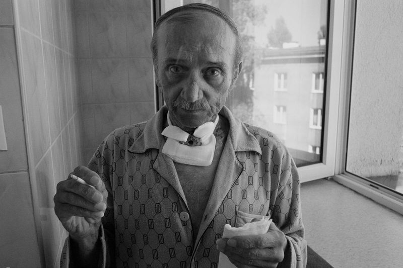 """He did not spend a lot of time with us. They put a tube into his throat and he was ready to go back to the oncology ward at his hospital. He did not believe it would work. """"I will never quit smoking"""" - he whispered covering the hole in his throat with his hand – """"it makes no sense now"""". We spoke a few times afterwards although it was not easy. He had problems talking and I had problems hearing but still we managed to chat about life, how it passes without even making you realize that. Most of the time when you do come to that conclusion you are at the end of your journey. I try to keep in touch with him. Lately his cancer has spread and January 12th 2009 he went back to the hospital. ------------------------ In march 2008 I was diagnosed with cancer and as a result had to undergo a surgery. This piece of news came to me as a shock. From June until August I spent a lot of time as a patient but nevertheless I decided to take advantage of this life experience and my stay at the hospital and deal with it as if it had been just another subject of my work, a chance to tell a story about people left somewhere between life and death. I chose a very traditional piece of equipment for this task as I used Zorka 4 with 2,8/35 and 8/28 lenses although sometimes I made use of Canon QL 17 as well. I came to this decision for many reasons. Firstly, I did not want to be perceived as a professional photo-journalist and thus create a fuss with my professional camera. Secondly, I simply found it perfect for the job as it was silent and very stable. What is more, this equipment requires full manual attention and accuracy. With all the free-time was in abundance it helped me to take the cancer off my mind. Finally, it was a rather sentimental return to the beginning of my career as I was taking into consideration the possibility that this subject could be my last one. Analogue Photography Black & White Healthcare Hospital Medicine Analog Photography Bad Habit Black And White Cigarette  D"""