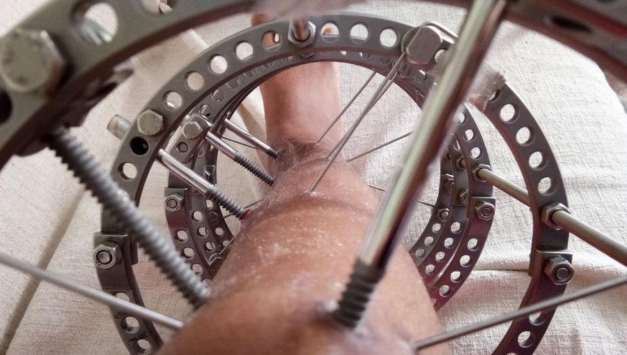 Close-Up Of External Fixator On Human Leg