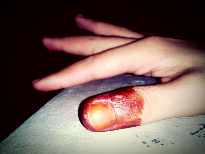 Randomshot Red Blood Scary HaNd !!!!! Darkness And Light