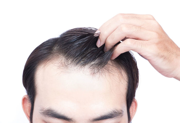 Young man serious hair loss problem for health care shampoo and beauty product concept Adult Growth HEAD Hair Hairline Bald Beauty Behind Bomb Closeup Concept Loosing Loss Medical Medicare Men Problem Receding Scalp Shampoo Thining Transplant Treatment White Background Worry