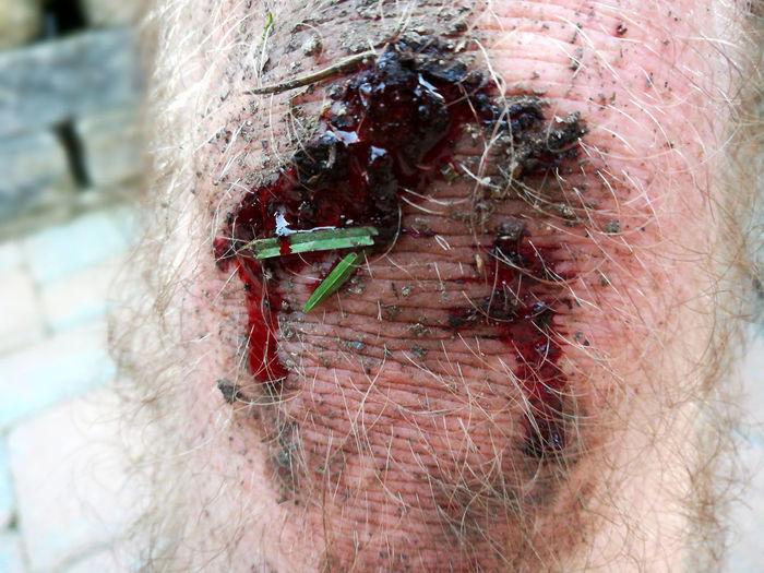 Human knee Blood Human Knee Dirty Crash Sturz Accidents And Disasters Accident Blutig Blutiges Knie Aufgeschlagen Blutvergiftung Wundstarkrampf Leg Men Red Close-up Human Blood