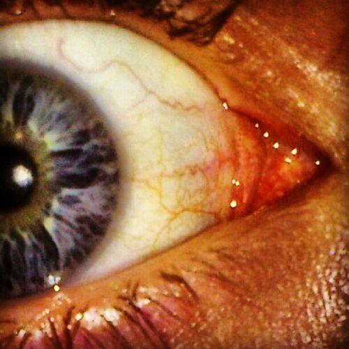 Eyeball Part II