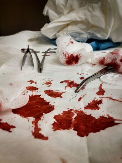 Blood on cotton swab and surgical scissors