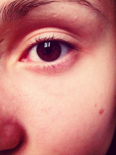 eye after the waterpark