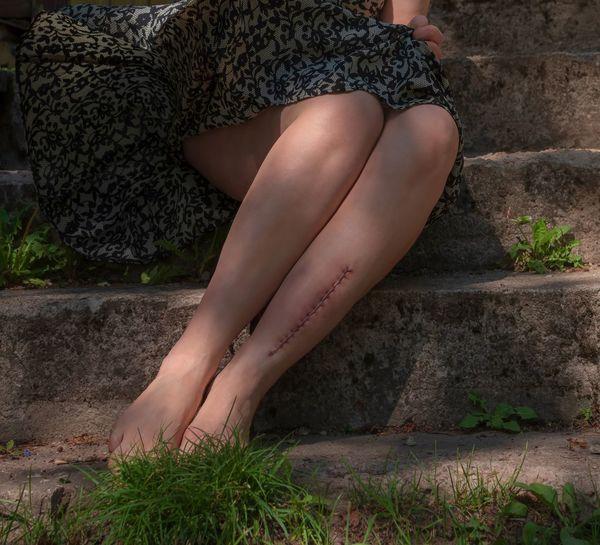 Imperfection Stigma Scar Wind Dress Low Angle View Beautiful Woman Beauty Women Human Leg Leg