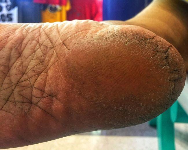 Close-up of hand on man