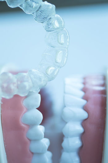 Close-up of dentures with aligner
