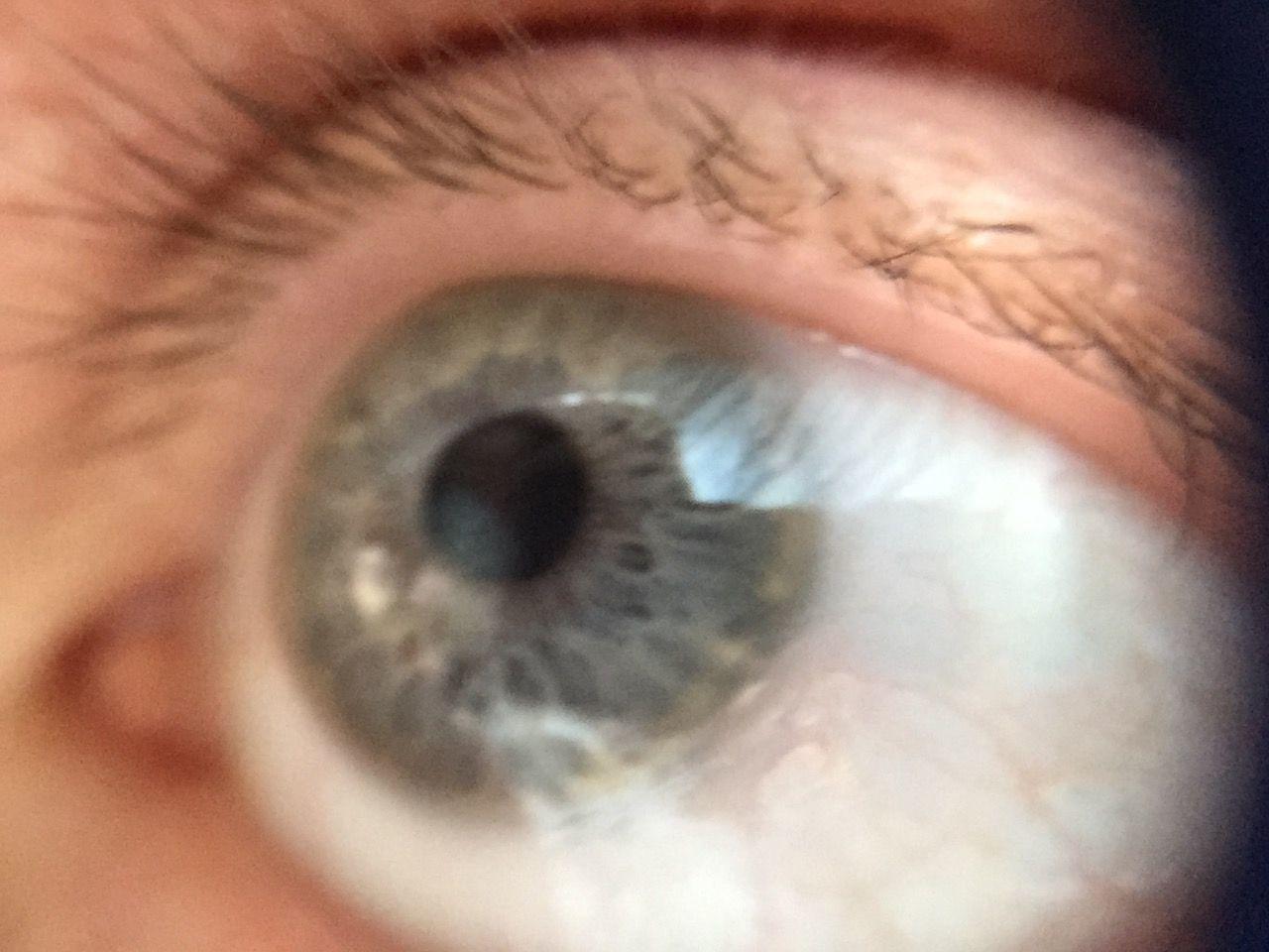 Detail Shot Of Human Eye