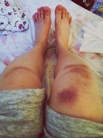 Oh.. My knees After Dance Training Crazy Moments