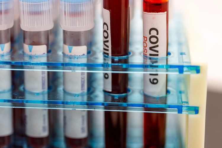 Close-up of blood samples on table in laboratory