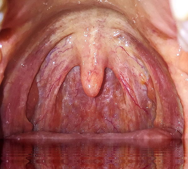 #uvula #uvula Closeup Dentist Inside Mouth Open Wide Open Your Mouth Throat Closeup Throat Photoshop Throwback Tonsil Abstra Tonsil Ar Tonsilitis Throat Body Part EyeEm Best Shots EyeEm Gallery EyeEm Best Edits