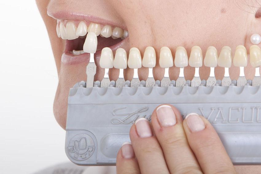 Human Teeth Eyeem