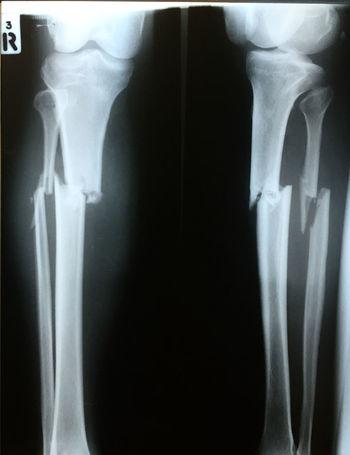 fracture both bone right leg Accident Anatomy Bones Bones! Broken Fracture Fractured Health Tibia