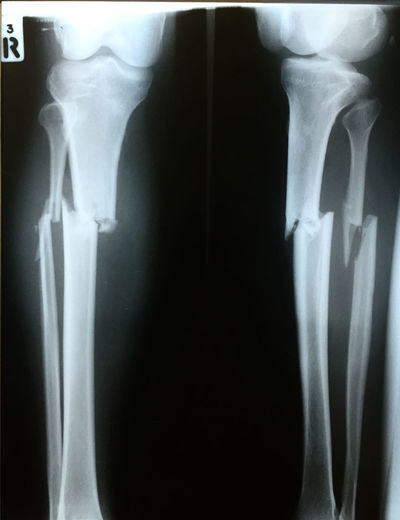 fracture both bone right leg Accident Anatomy Bones Bones! Broken Fracture Fractured Health Tibia