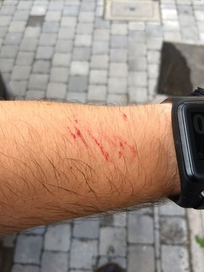 scratched up my forearm a bit Forearm Scratches Blood EyeEm Selects Human Hand City Close-up Wrist Personal Perspective Smart Watch Watch Wound Wristwatch