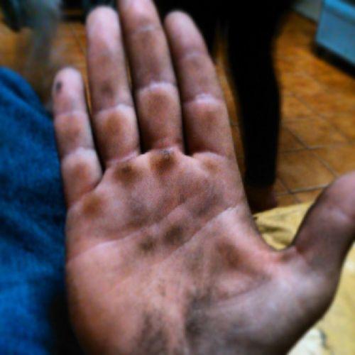 Así es la mano de alguien que anda en bici Bmx  Bmxlife Callos Love
