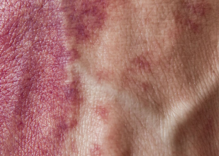 The skin i live in Not Your Cliche Macro Beauty Flesh Hemangioma Macro Port Wine Stain Skin The Skin I Live In Individuality Personal Perspective Real People Birthmark Red Is Beautiful The Portraitist - 2016 EyeEm Awards Fine Art Photography Abstract