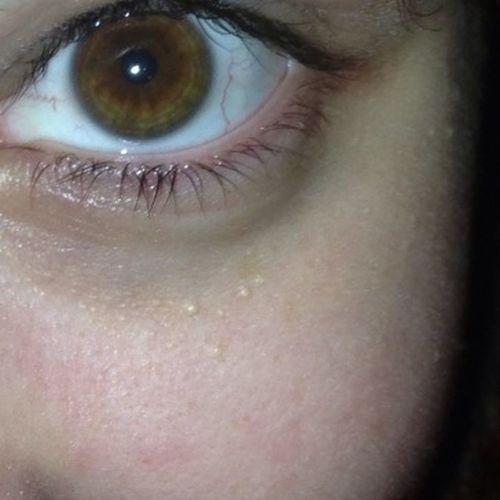 Descubrir Tu Verdadero Color De Ojos Con 20 Años
