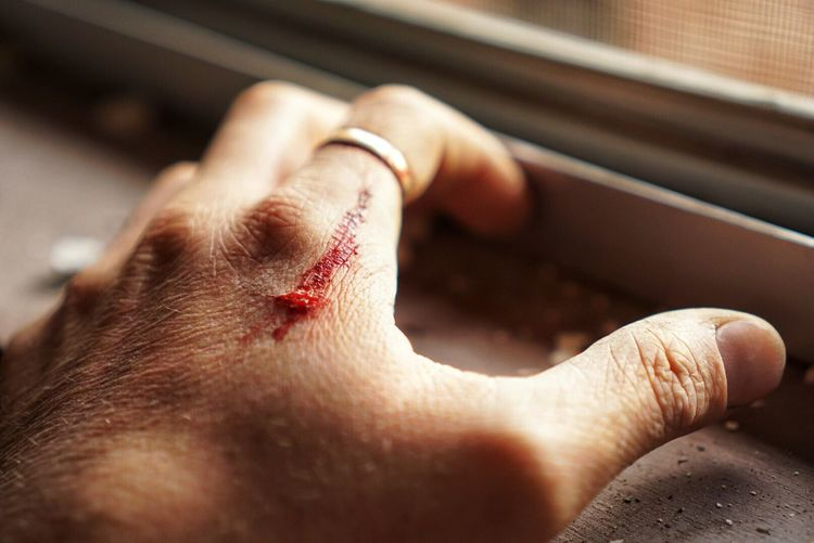 Cropped Image Of Injured Hand