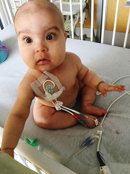 Shaved Head Central Line Child Illness SCIDS Children's Hospital  Chemotherapy Baby Girl