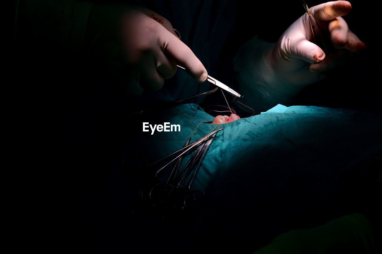 Cropped Hands Of Surgeon Stitching Patient In Operating Room