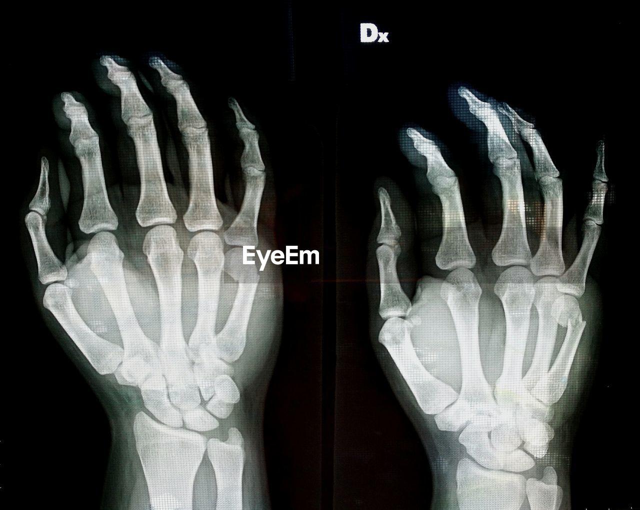 medical x-ray, human body part, anatomy, healthcare and medicine, human bone, human skeleton, technology, medical exam, prosthetic equipment