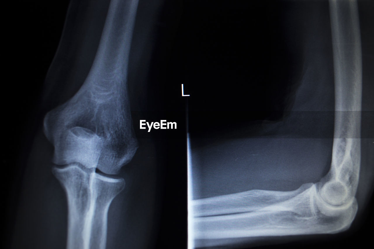healthcare and medicine, medical x-ray, bone, x-ray image, limb, human body part, body part, human bone, hospital, fracture, anatomy, human joint, medical exam, joint - body part, close-up, people, human limb, indoors, physical injury, human skeleton, radiologist, human knee, finger