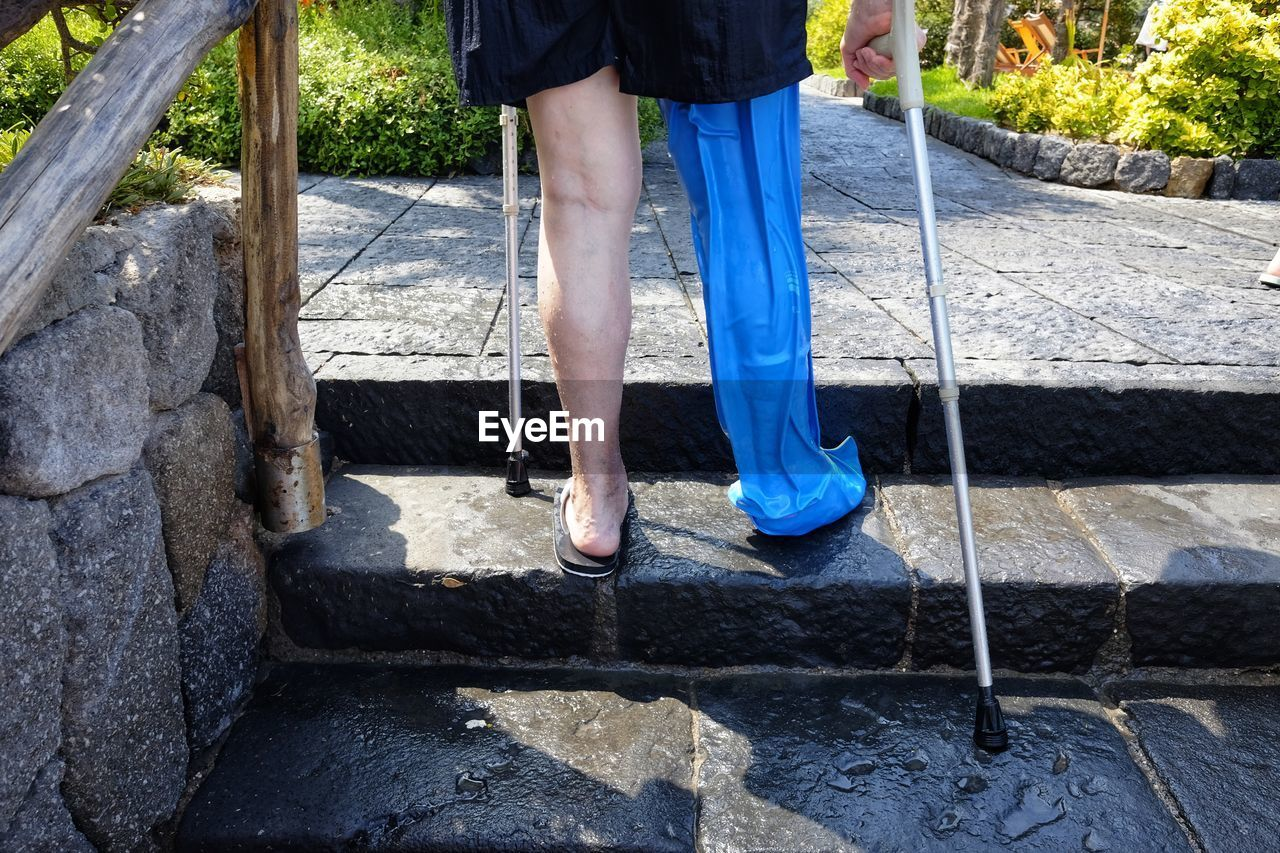 Low section of person with prosthetic leg walking on steps at park