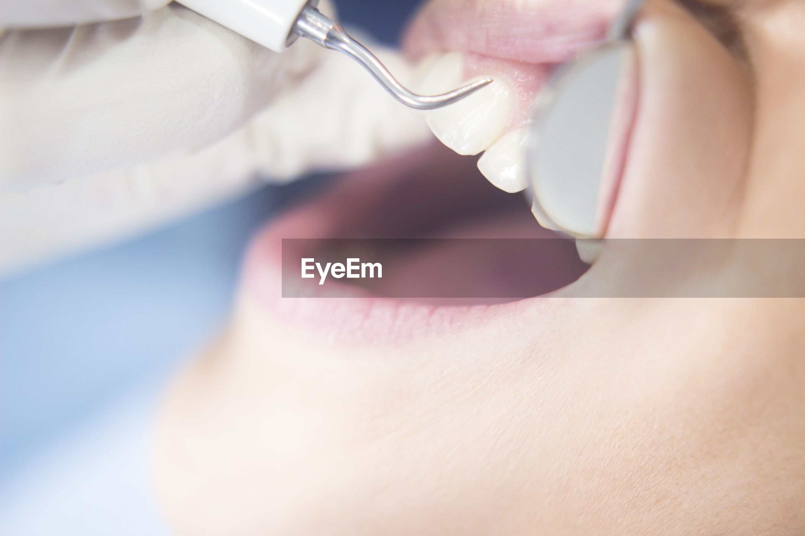 Close-up of patient during dental procedure