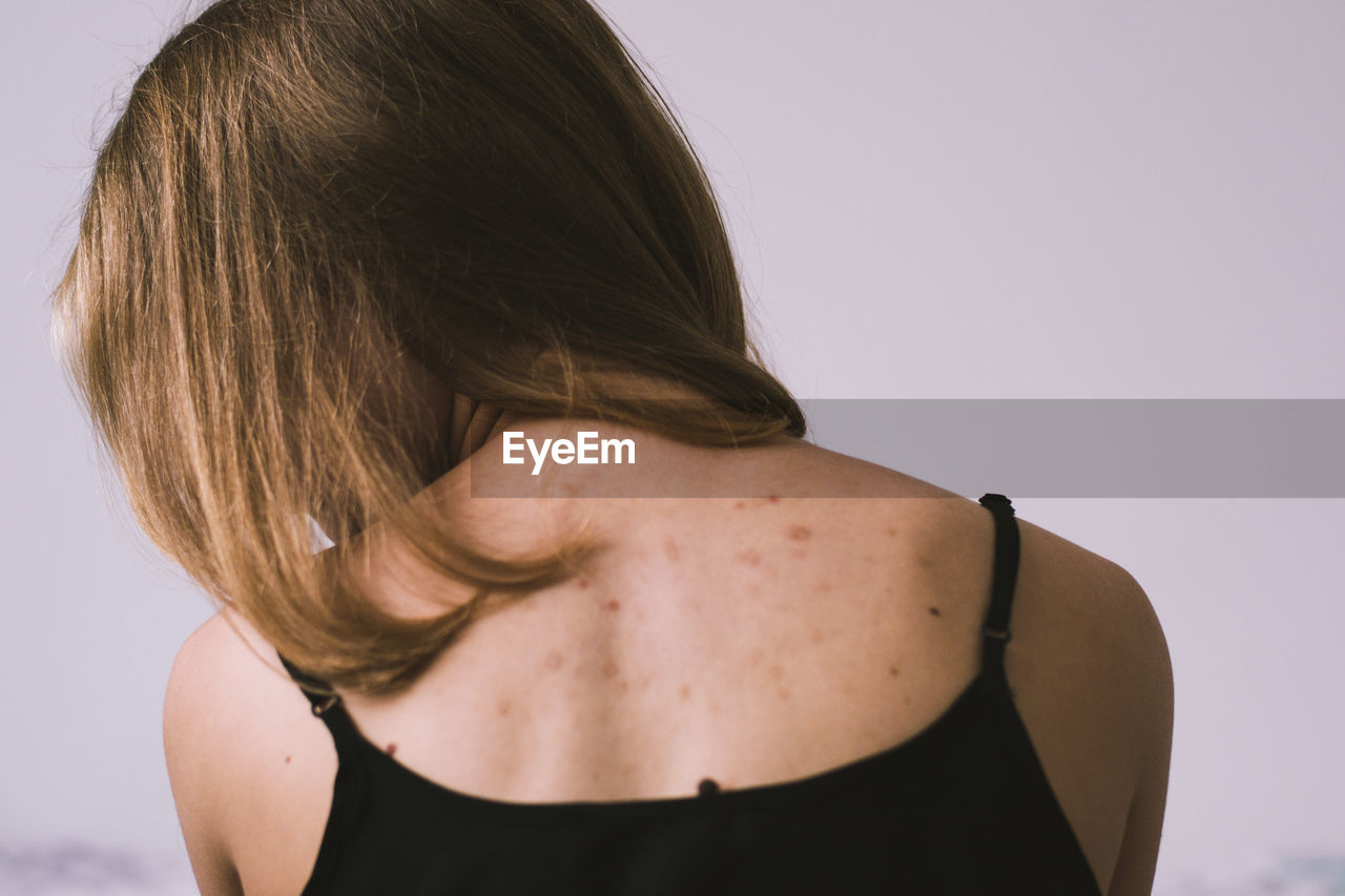 Rear View Of Woman With Spots On Back Against White Background