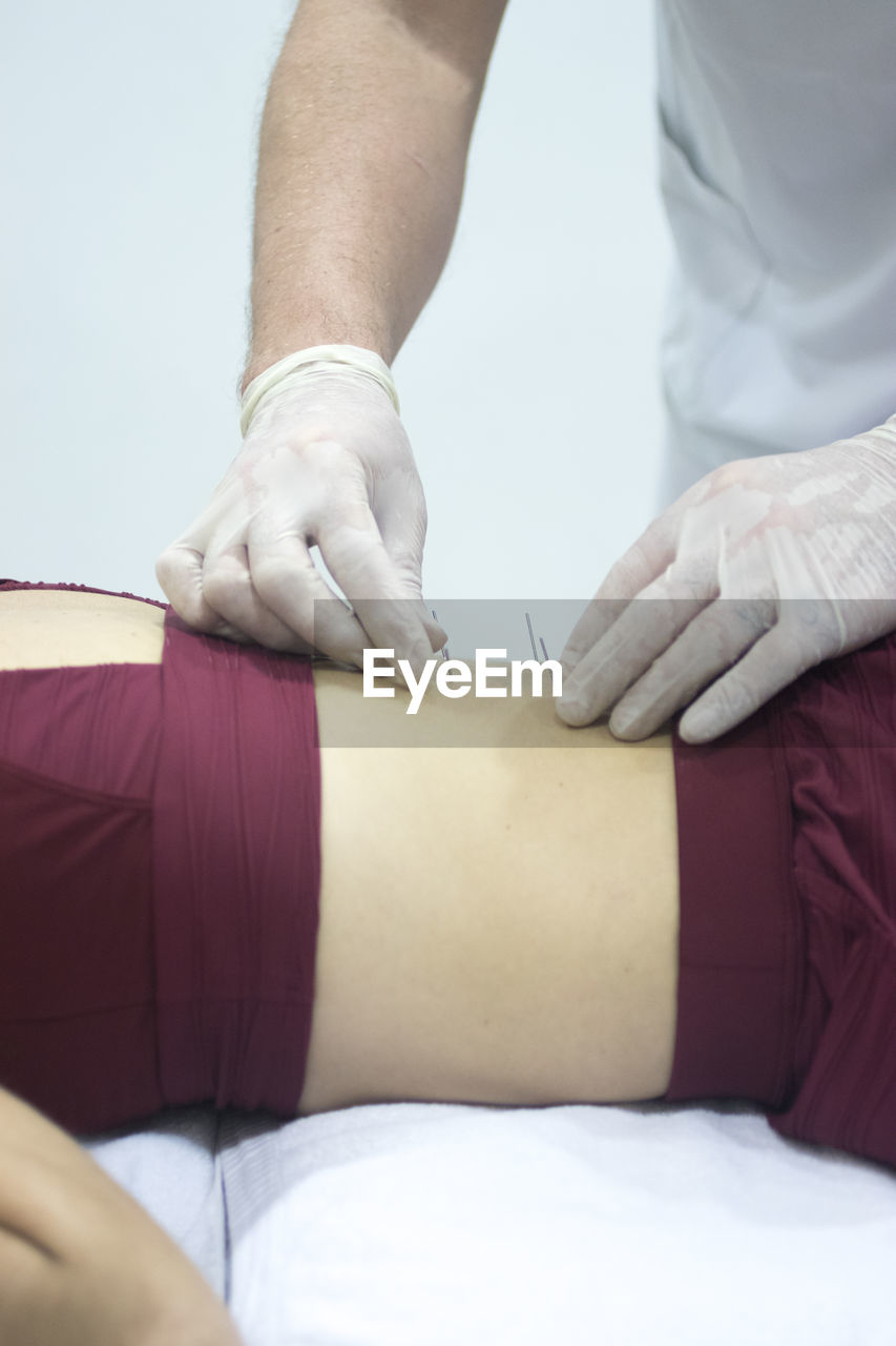 Midsection Of Message Therapist Inserting Needles On Woman Back