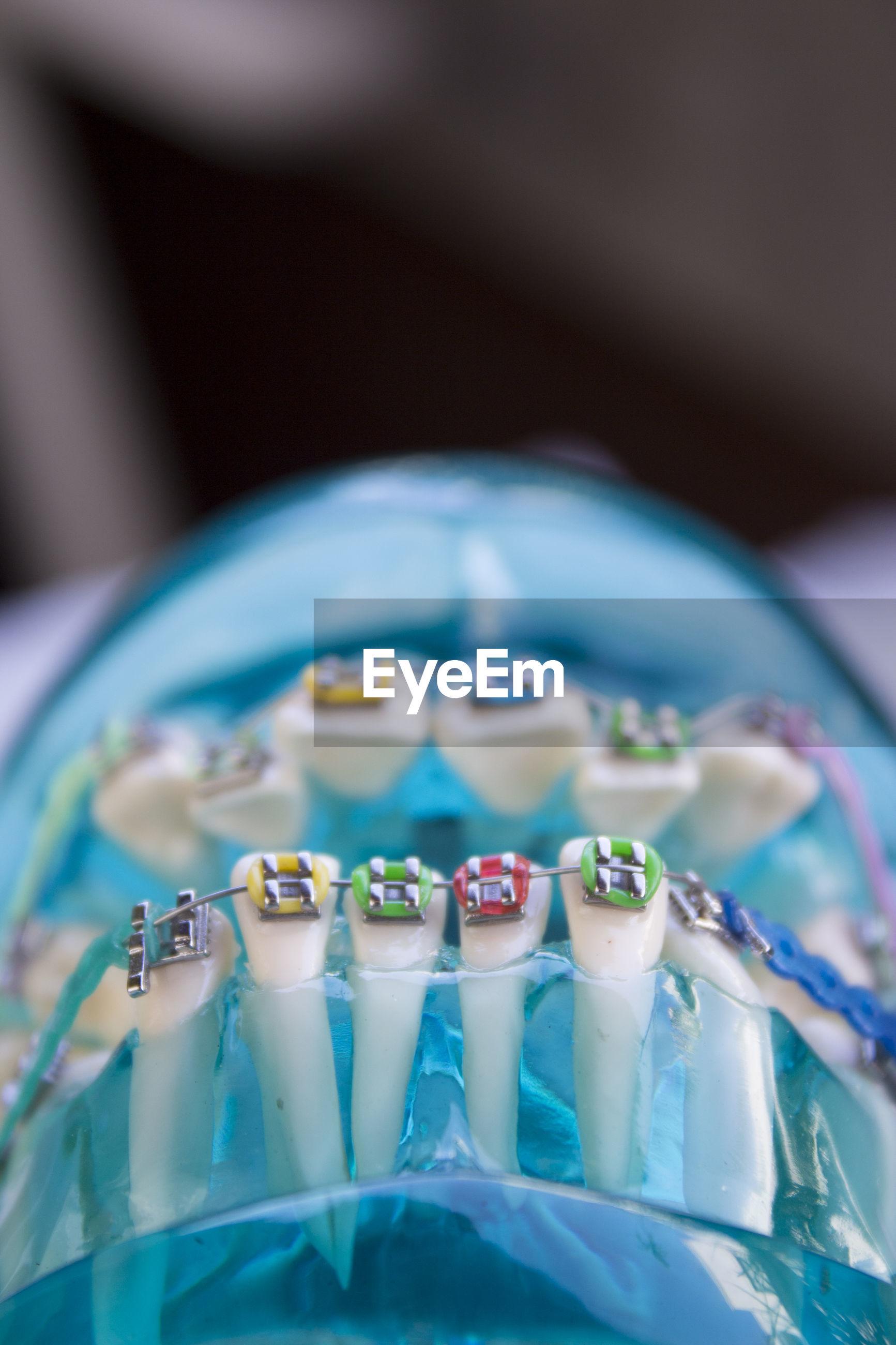 Close-up of blue plastic denture with braces