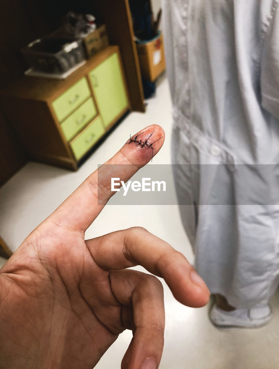 Cropped hand of patient with stitches on finger