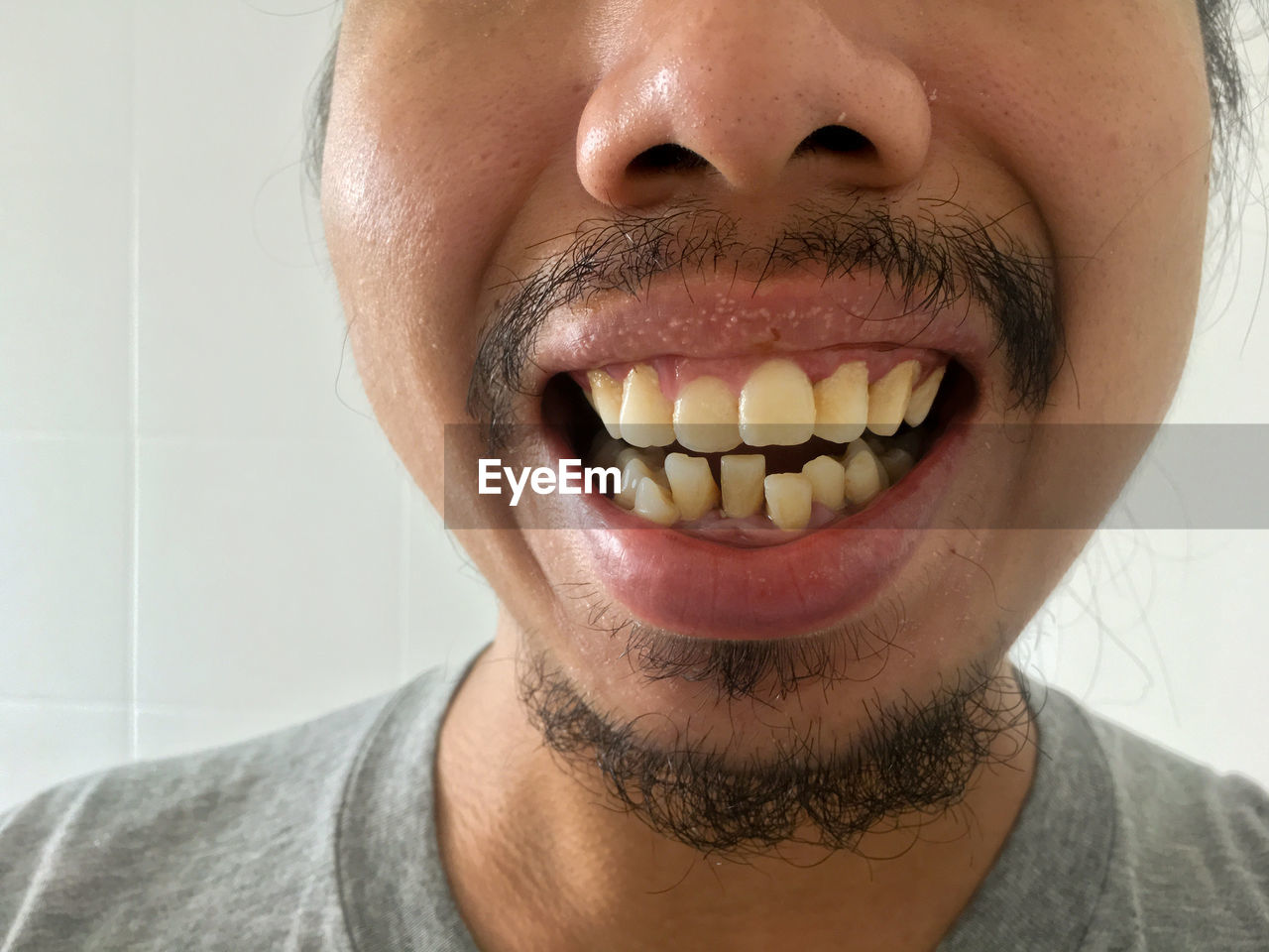 one person, close-up, human body part, indoors, front view, portrait, human teeth, healthcare and medicine, headshot, facial hair, beard, lifestyles, body part, smiling, men, young adult, human mouth, teeth, adult, human face, human lips, mouth open