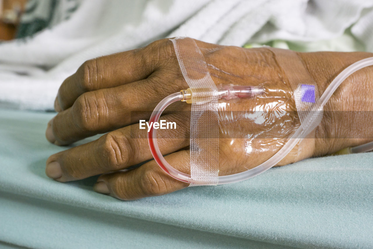 Cropped Image Of Patient With Iv Drip On Bed In Hospital