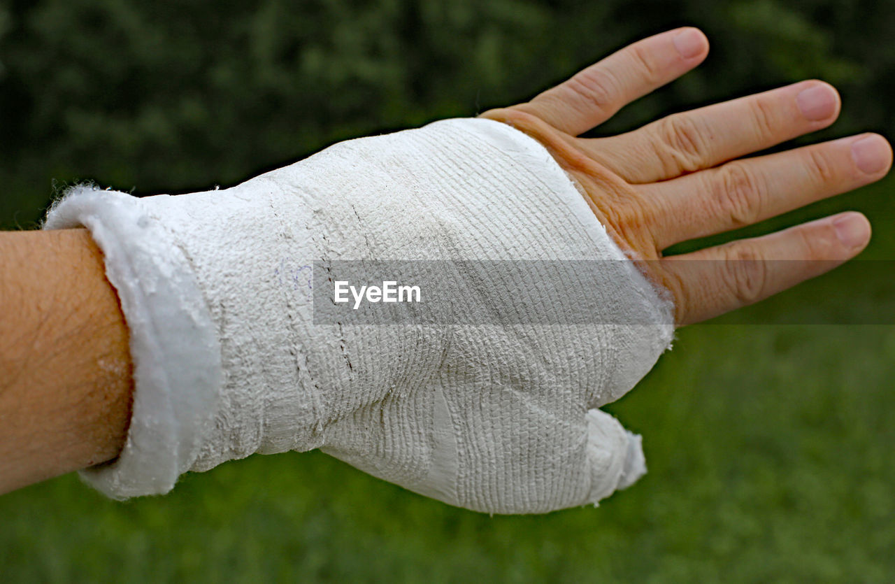 Cropped Injured Hand With Plaster