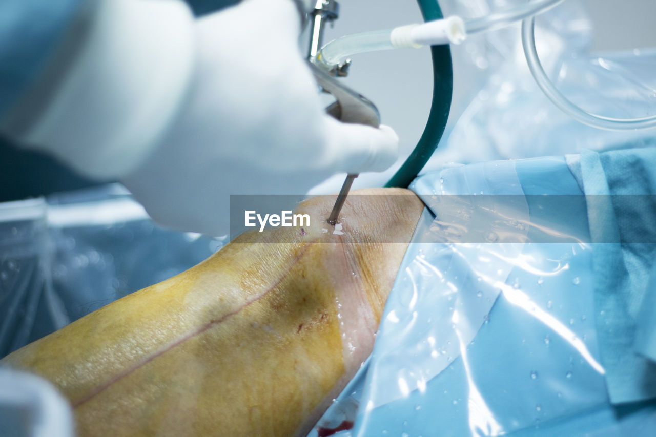 Cropped hand of doctor operating patient during knee surgery