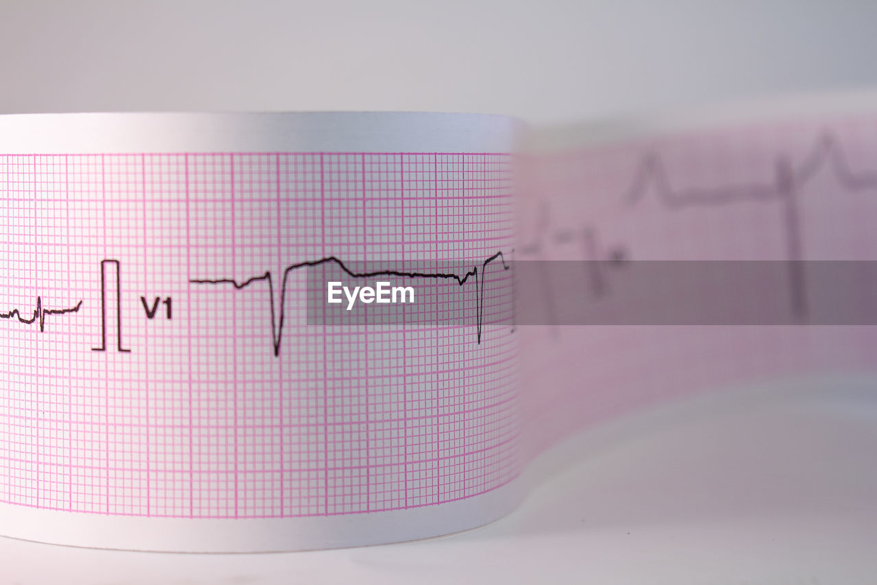 diagram, graph, close-up, communication, pink color, technology, indoors, paper, no people, data, healthcare and medicine, still life, instrument of measurement, text, chart, number, business, selective focus, research, high angle view, line graph, pulse trace
