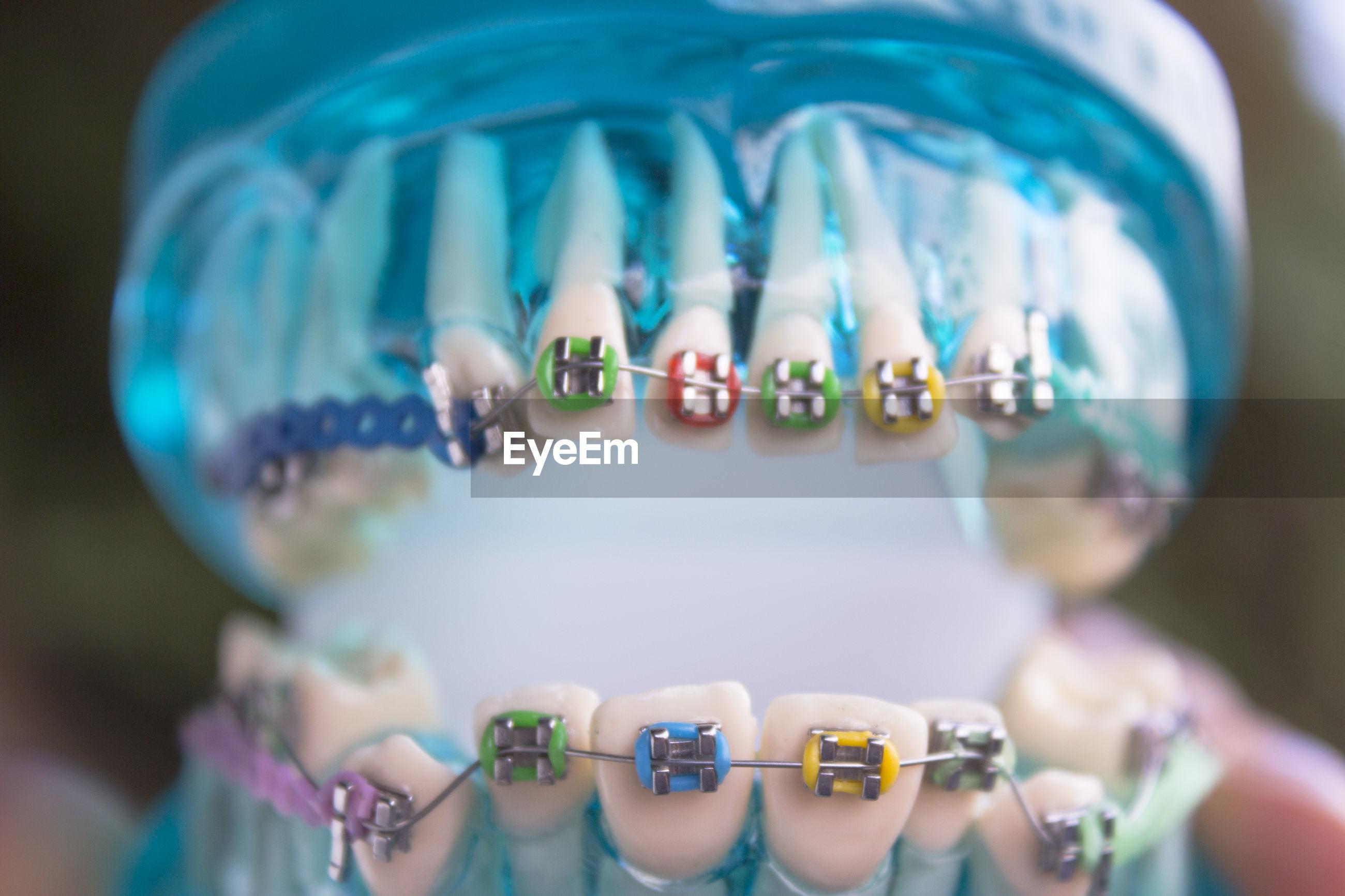 Close-up of dental equipment