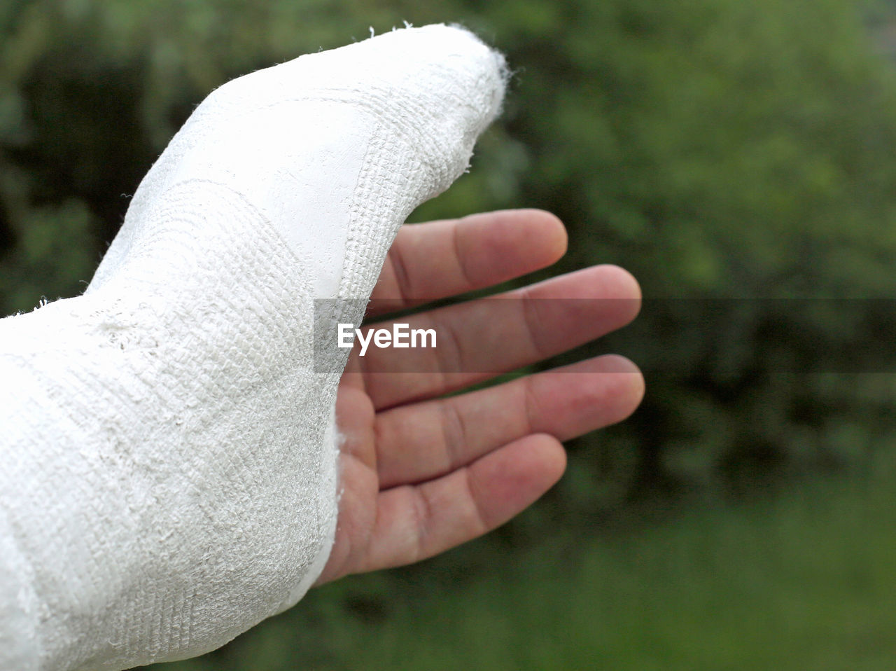 human body part, human hand, hand, body part, focus on foreground, one person, real people, close-up, day, lifestyles, human finger, finger, unrecognizable person, bandage, nature, white color, physical injury, medical supplies, limb, human limb