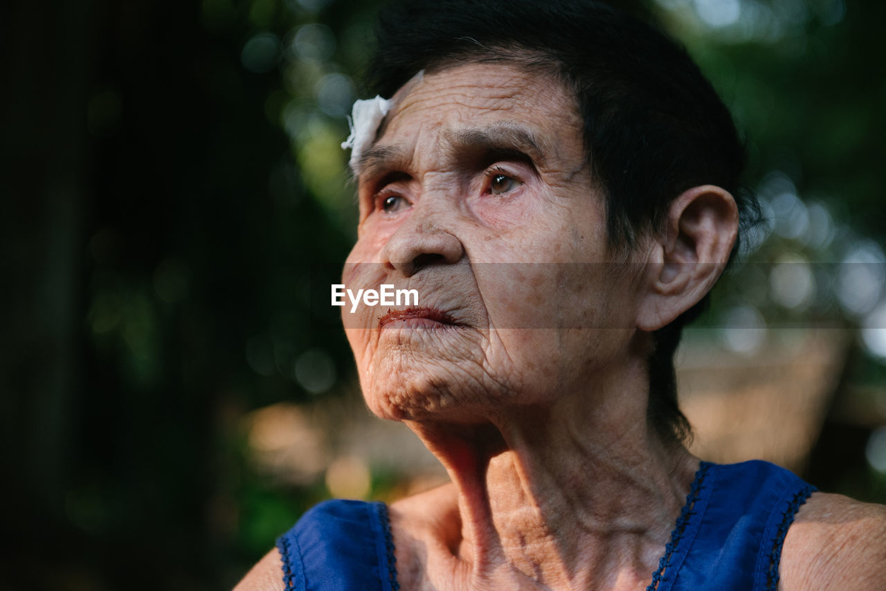 Woman with injured forehead outdoors