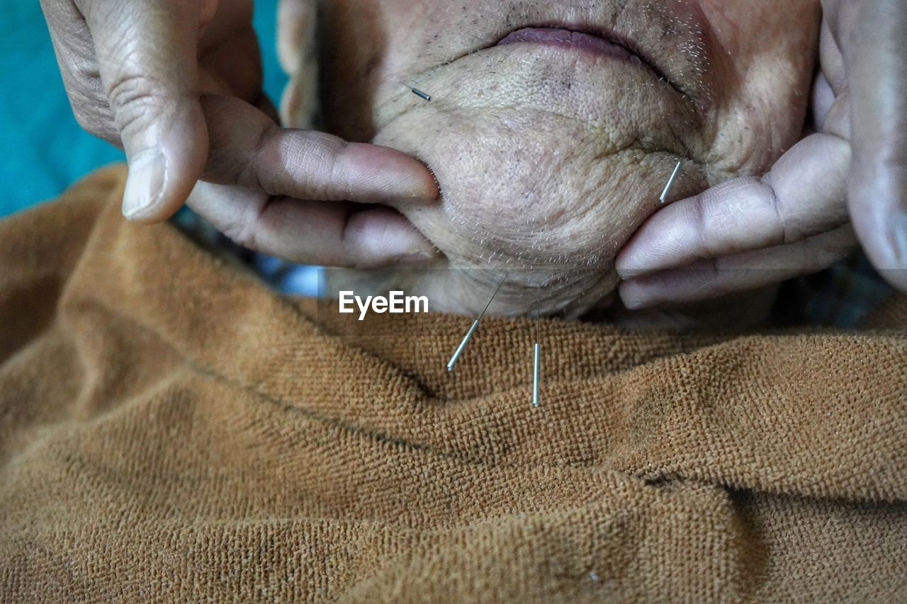 Close-Up Of Cropped Hands Holding Senior Man With Acupressure Needles