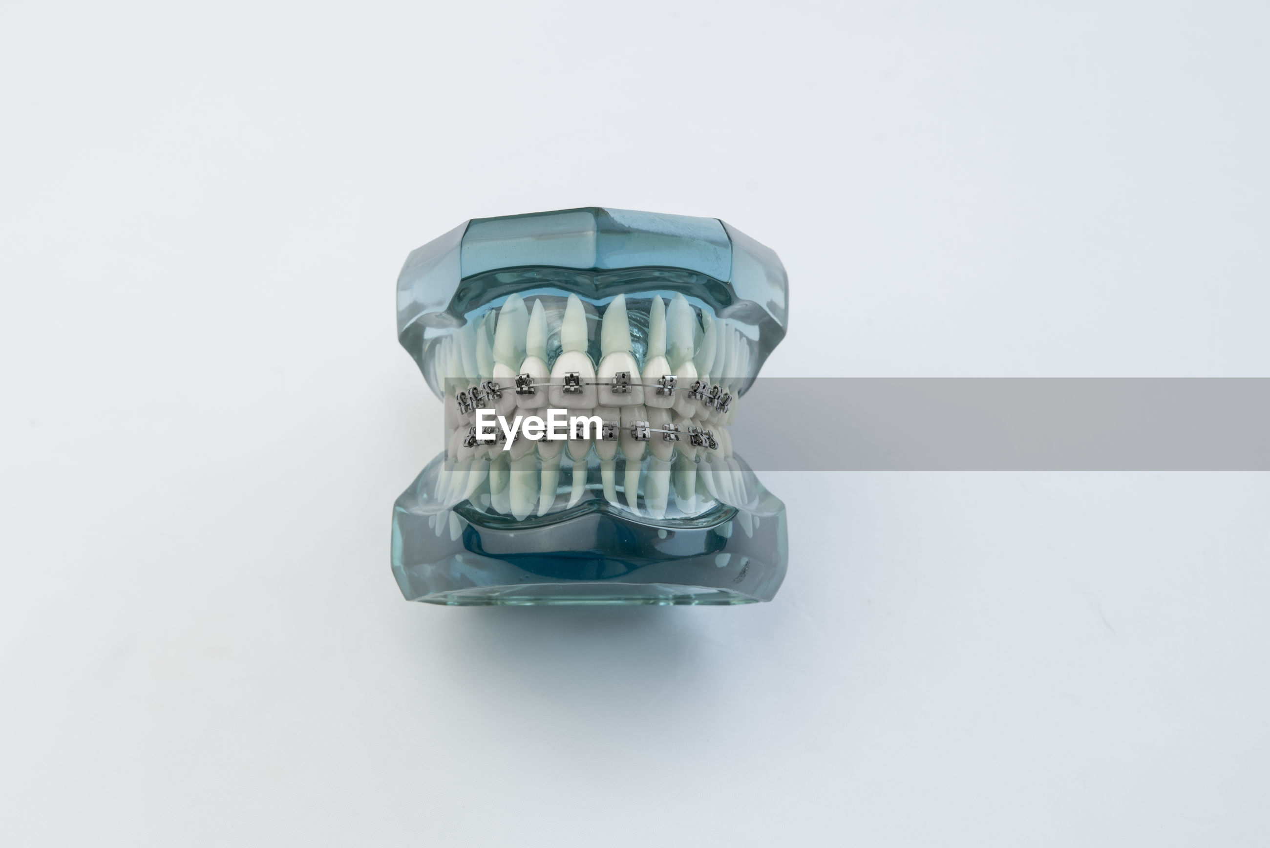 Directly above shot of dentures on table