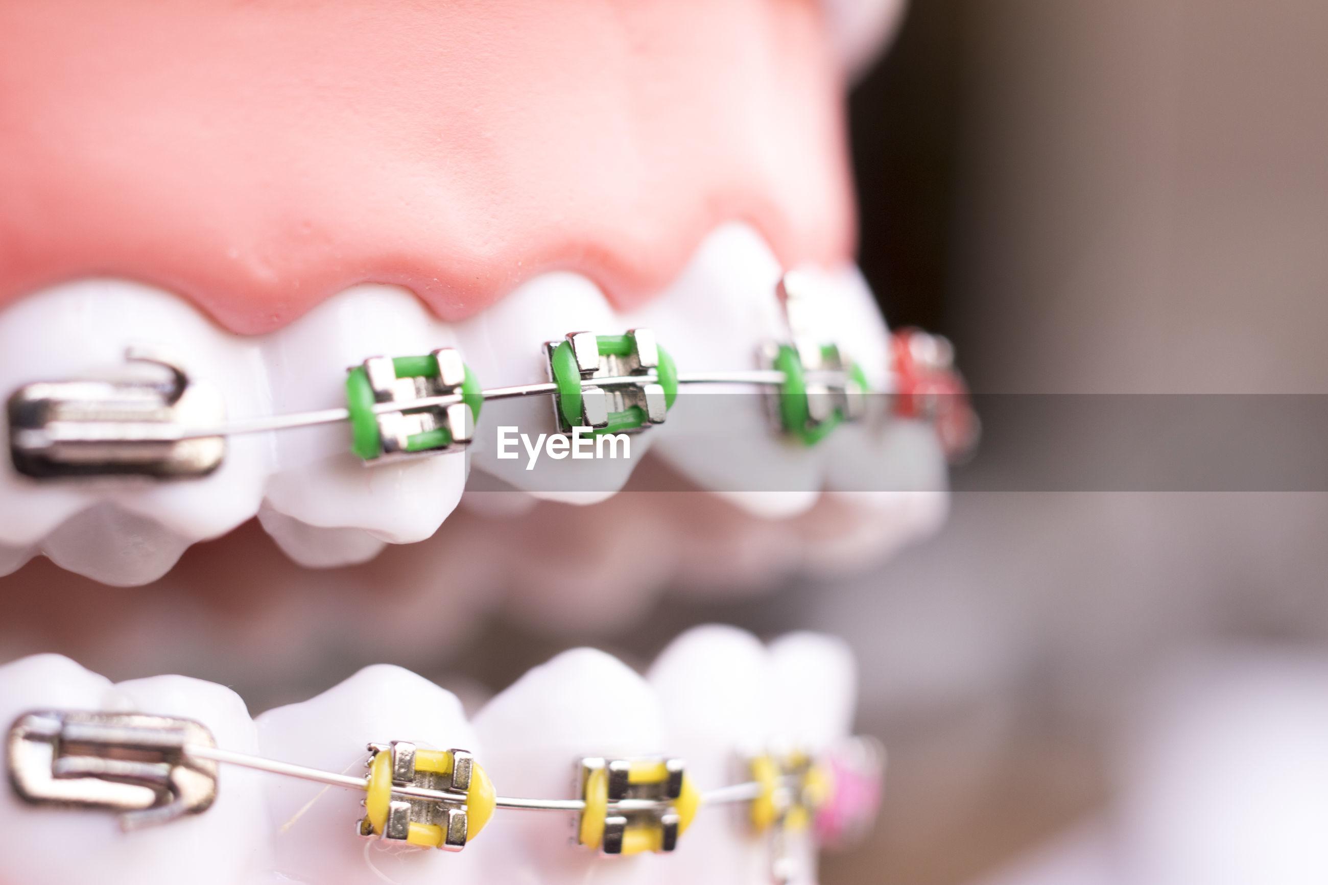Close-up of braces dentures