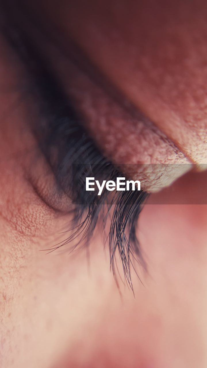 CLOSE-UP OF HUMAN EYE WITH HANDS
