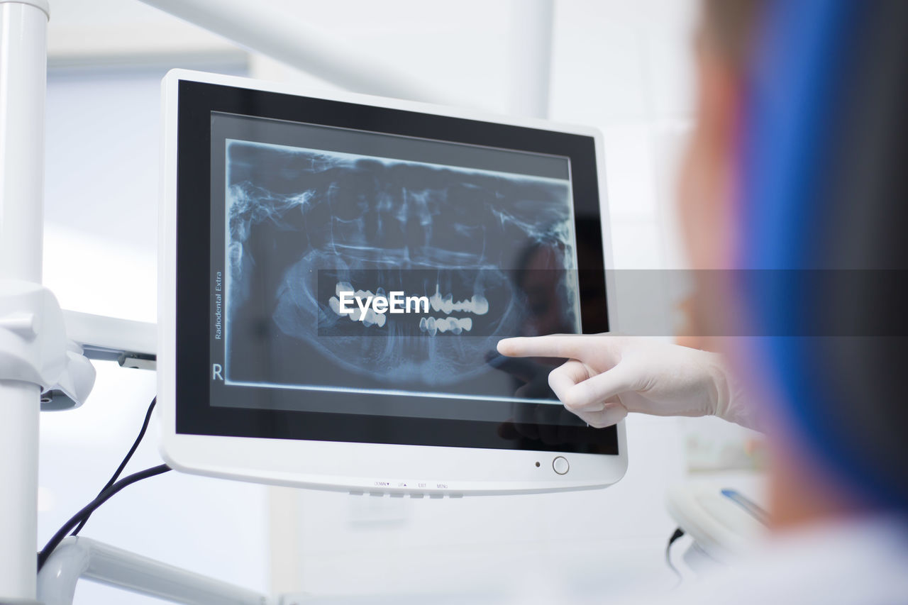 Cropped hand of doctor pointing at display screen in hospital